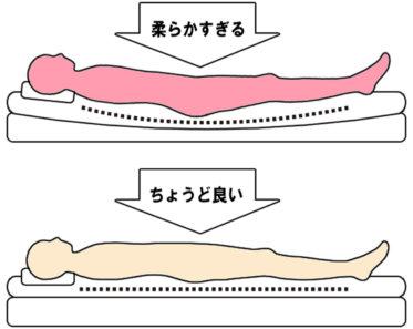 睡眠中の腰痛の原因