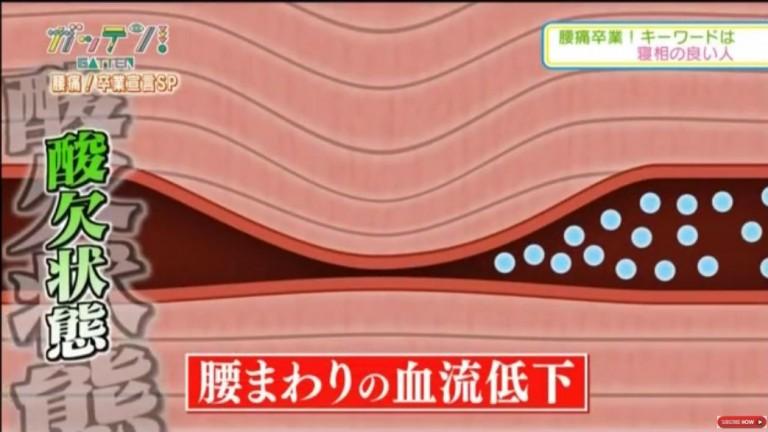 睡眠中の腰痛の原因は血流